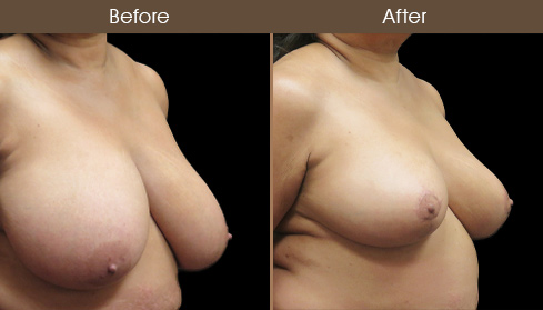 Breast Reduction & Breast Lift Before & After