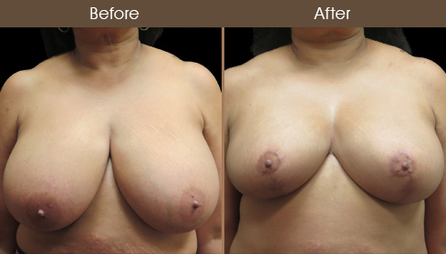 Breast Reduction & Breast Lift Before And After