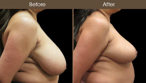 Breast Reduction And Breast Lift Results