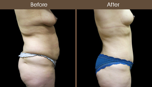 Before And After New York City Mommy Makeover Surgery