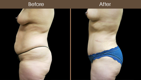 Before & After New York City Mommy Makeover Surgery
