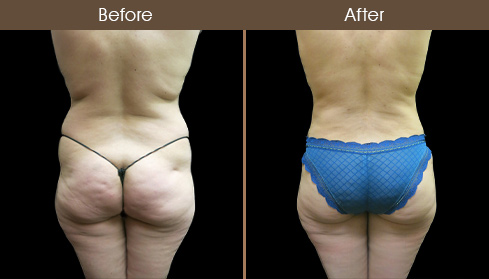 Before & After Liposuction In New York City