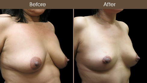 NYC Mastopexy Before And After