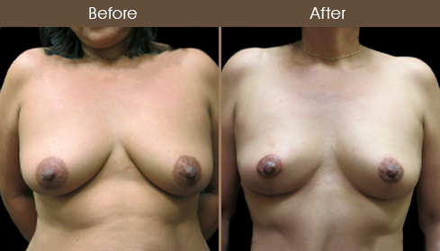 Before & After NYC Breast Lift Surgery