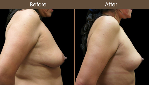 NYC Mastopexy Before & After
