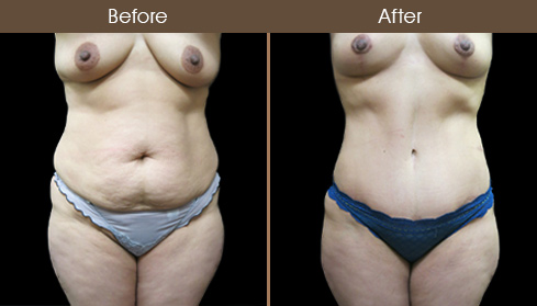Before & After Abdominoplasty In New York City
