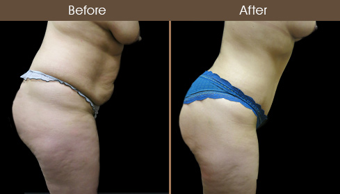 Before & After Abdominoplasty Surgery In New York City