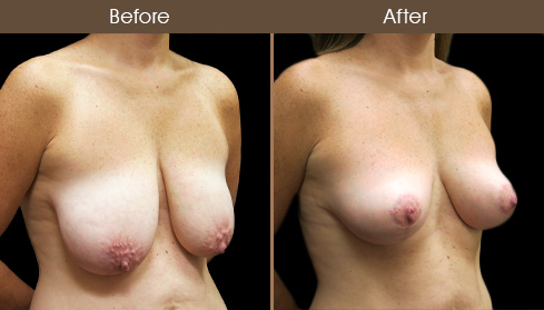 Before And After NYC Mastopexy