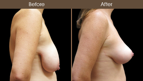 Before & After NYC Mastopexy