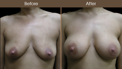 Breast Implant Surgery Before And After Front Image