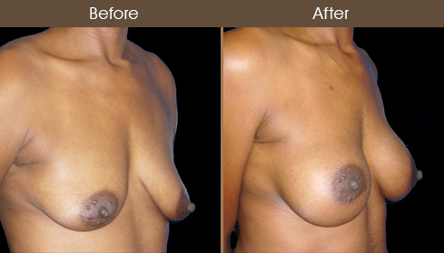 NYC Breast Augmentation Surgery Before & After