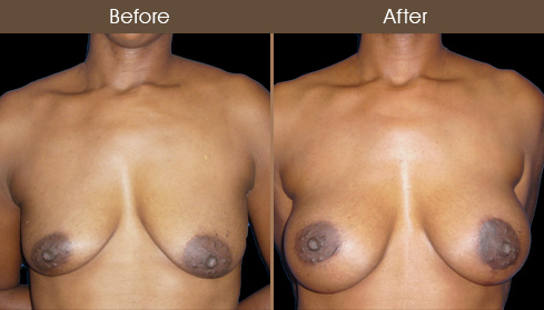Before & After NYC Breast Augmentation