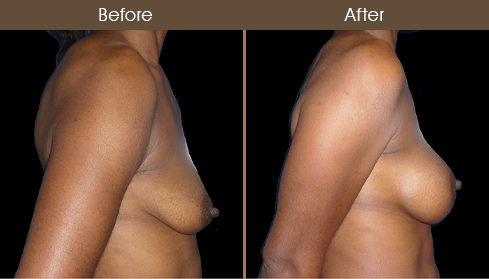 NYC Breast Augmentation Surgery Before And After