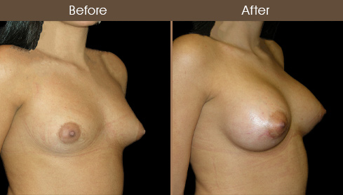 Before & After NYC Breast Augmentation Surgery