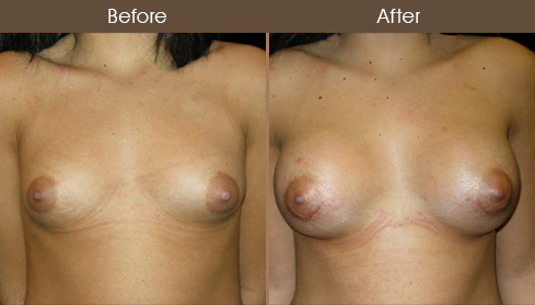 NYC Breast Augmentation Surgery Results