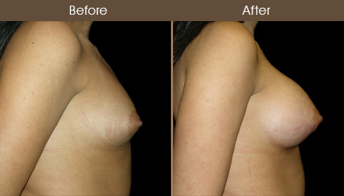 Before And After NYC Breast Augmentation Surgery