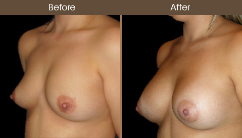 NYC Breast Implants Before & After