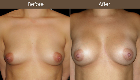NYC Breast Implants Before And After