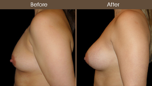NYC Breast Implants Results