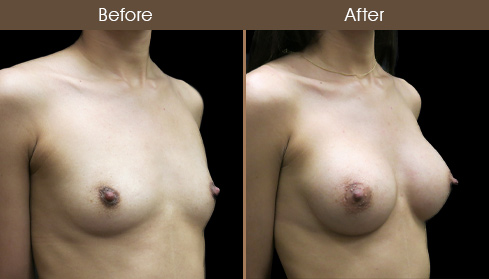 Before & After NYC Breast Implants