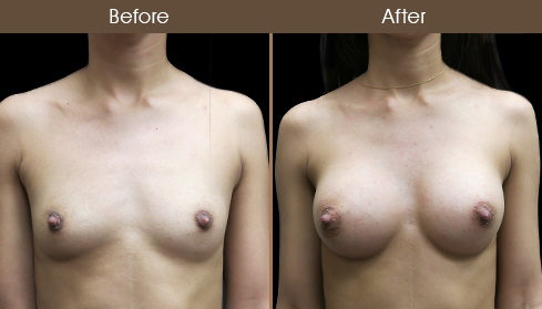 Before And After NYC Breast Implants
