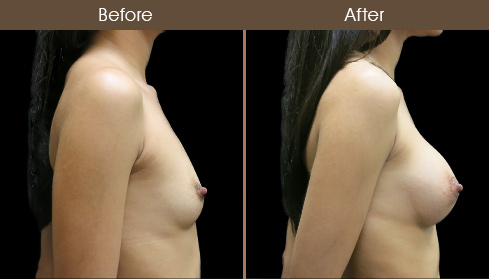 NYC Breast Implant Surgery Before And After