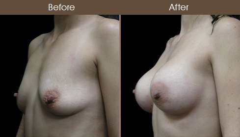 Before And After NYC Breast Implant Surgery