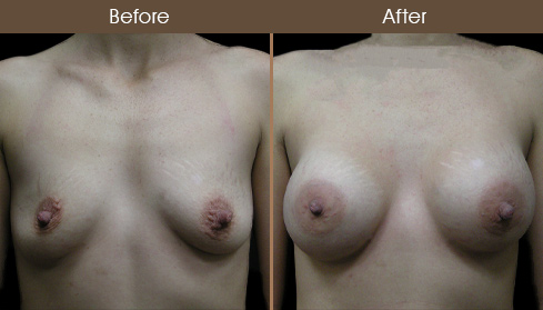 NYC Breast Implant Surgery Before & After