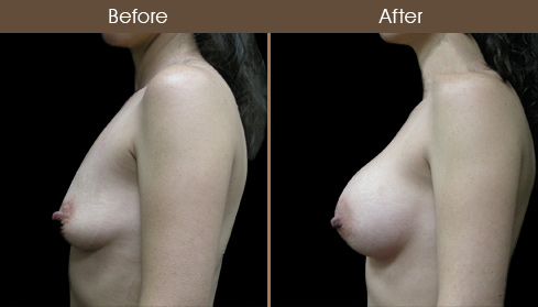 NYC Breast Implant Surgery Results