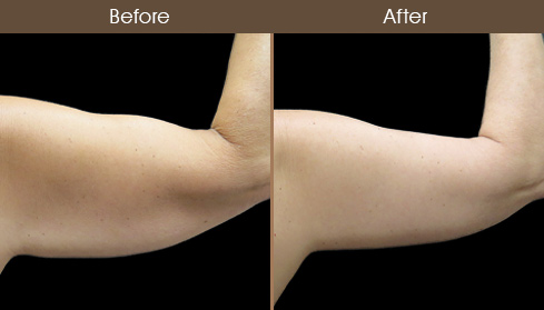 Before And After Arm Lift Back Image