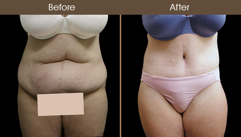 Before & After Body Lift Surgery