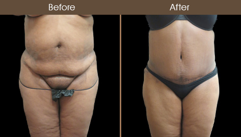 Before And After Tummy Tuck In NY
