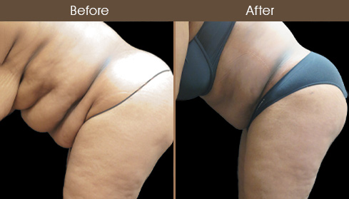 Before And After Tummy Tuck Surgery In NY