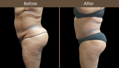 Before & After Tummy Tuck In NY