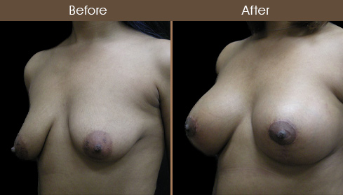 Breast Lift & Augmentation Before & After