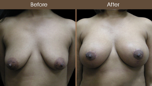 Breast Lift & Augmentation Before And After