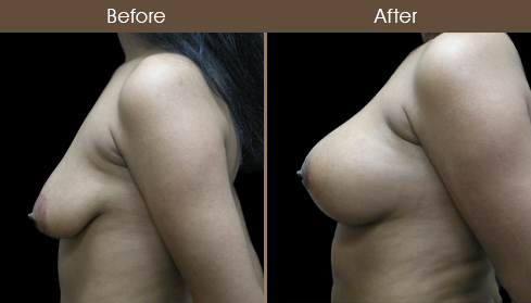 Breast Lift Surgery & Augmentation Before And After