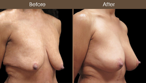 Breast Lift Surgery & Augmentation Results