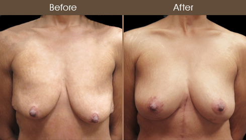 Breast Lift Surgery & Augmentation Before & After
