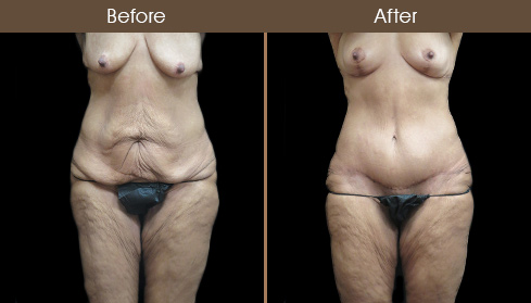 Before & After Tummy Tuck Surgery In NY