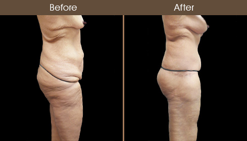 Before And After Abdominoplasty In NY