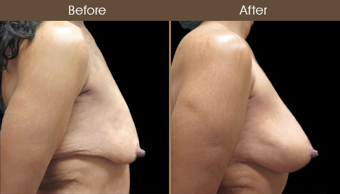 Before & After Bodylift In NYC