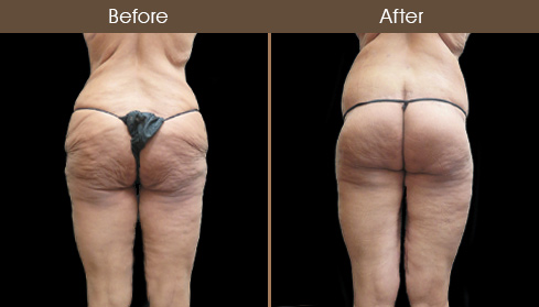 NYC Bodylift Before & After