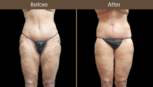 NYC Bodylift Before And After