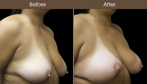 Breast Lift & Breast Augmentation Before And After