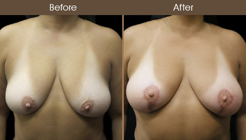 Before & After Breast Lift Surgery & Augmentation