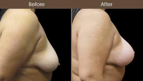 Breast Lift & Breast Augmentation Before & After