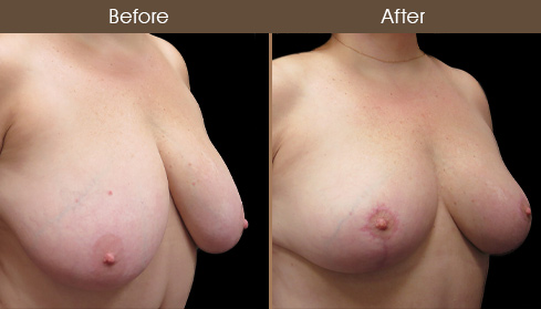 Before & After New York Breast Reduction
