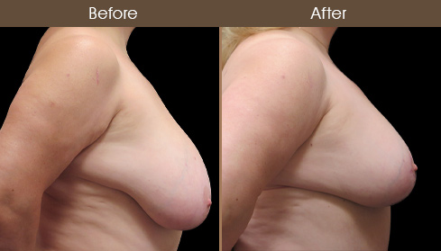 New York City Breast Reduction Before And After
