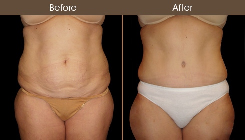 Before & After Abdominoplasty In NY